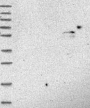 NBP1-85362 - CYP46A1