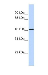 NBP1-62384 - CYP4F12