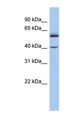 NBP1-60084 - CYP4V2