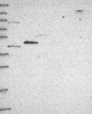 NBP1-91817 - CYP4Z1