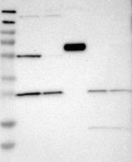NBP1-87013 - CYP7B1