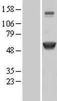 NBL1-08661 - CaMKII alpha Lysate