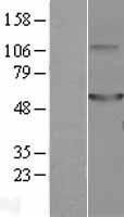NBL1-08663 - CaMKII delta Lysate