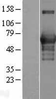 NBL1-08668 - CaMKK Lysate
