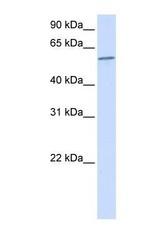 NBP1-57844 - PPP3CA / Calcineurin A