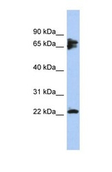 NBP1-56816 - PPP3R1 / Calcineurin B