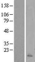 NBL1-08643 - Calcitonin Lysate