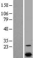 NBL1-09168 - Calcium-binding-protein-P22 Lysate