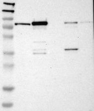 NBP1-85702 - Caldesmon