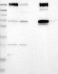 NBP1-86038 - Calicin