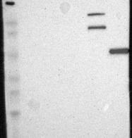 NBP1-87489 - Calpain-10