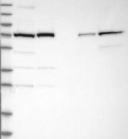 NBP1-88204 - Calpain-2