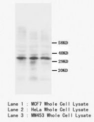 NBP1-41301 - Calponin-1