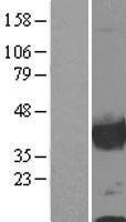 NBL1-09314 - Calponin Lysate