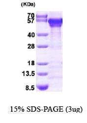 NBP1-44499 - Calreticulin