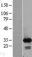 NBL1-08641 - Calretinin Lysate