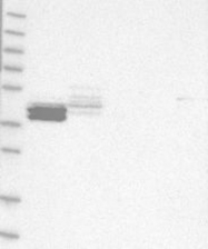 NBP1-87304 - Calsequestrin-2