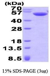 NBP1-41229 - Calsequestrin-2