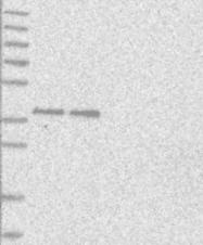 NBP1-88175 - Cannabinoid receptor 2