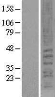 NBL1-09328 - Cannabinoid Receptor II Lysate