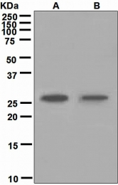 NBP1-95639 - Carbonic anhydrase 1