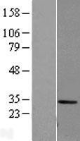NBL1-08609 - Carbonic Anhydrase I Lysate