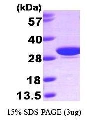 NBP1-30290 - Carbonic anhydrase 1