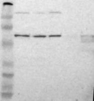 NBP1-87403 - Carboxypeptidase M
