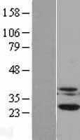 NBL1-09538 - Casein Kinase 2 beta Lysate
