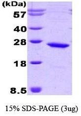 NBC1-22577 - Casein kinase II beta