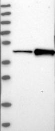 NBP1-86048 - Cathepsin B