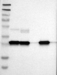 NBP1-85562 - Cathepsin D