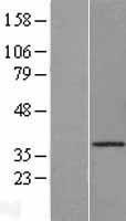 NBL1-09597 - Cathepsin O Lysate