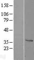 NBL1-09599 - Cathepsin Z Lysate
