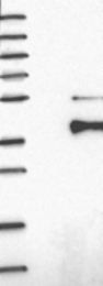 NBP1-83224 - CBX8