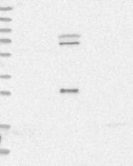NBP1-84573 - CDC14A
