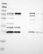 NBP1-84946 - CDC34