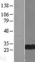 NBL1-09001 - Cdc34 Lysate