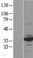 NBL1-09039 - Cdk4 Lysate