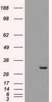 NBP1-47692 - CDK5