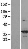 NBL1-09044 - Cdk6 Lysate