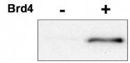 NBP1-77756 - Cyclin E2