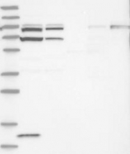 NBP1-84543 - ACAP2 / CENTB2
