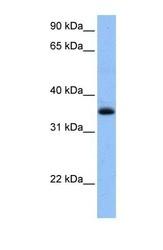 NBP1-55094 - ARHGAP3 / CHN2
