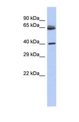 NBP1-55257 - ARHGAP3 / CHN2