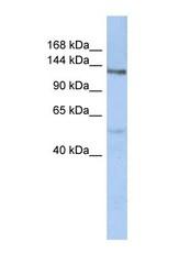 NBP1-59673 - CHSY3