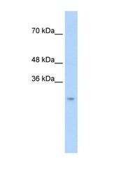 NBP1-58002 - CTRL1