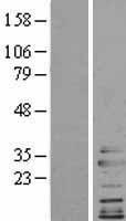 NBL1-09287 - Clathrin light chain Lysate