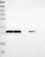 NBP1-89674 - Claudin-16 / CLDN16