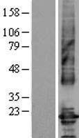 NBL1-09246 - Claudin 4 Lysate